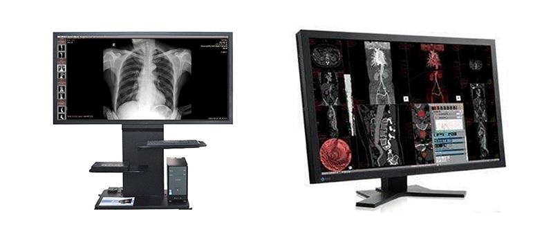 Medical capacitive touch screen display